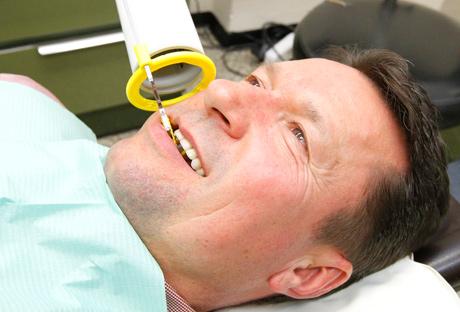 behandlung-endodontie-deussen